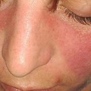 Qué es el lupus