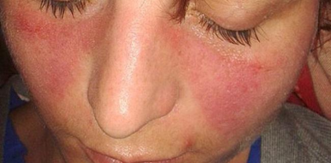 Muscular enfermedad del lupus dolor