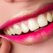 causas dientes amarillos
